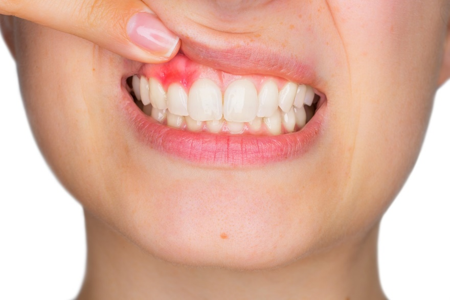 Unsure if you need an emergency dental appointment? Read on