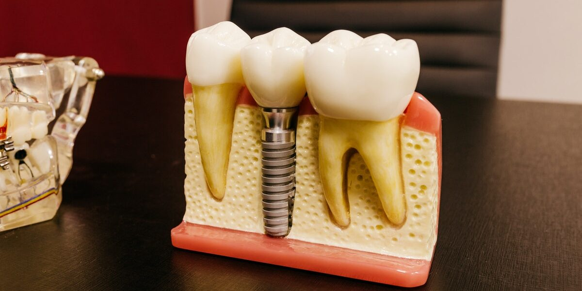 Missing teeth: let's fill in the gaps